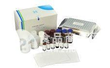 沙丁胺醇检测试剂盒
